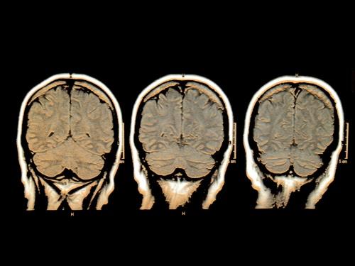 cerebro compulsivo