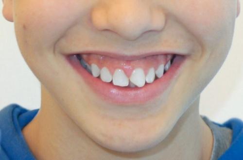 fractura-dental-diente-roto